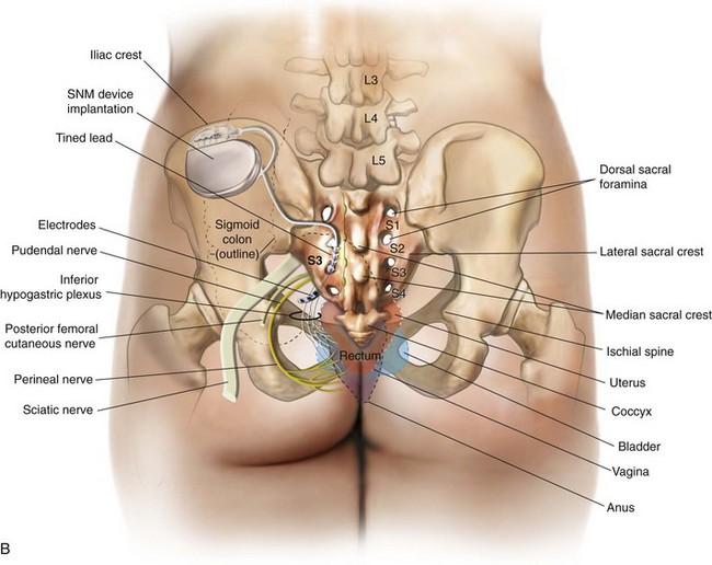 Sacral Neuromodulation Abdominal Key