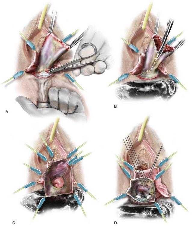 Vaginal Repair Of Enterocele And Apical Prolapse -4270