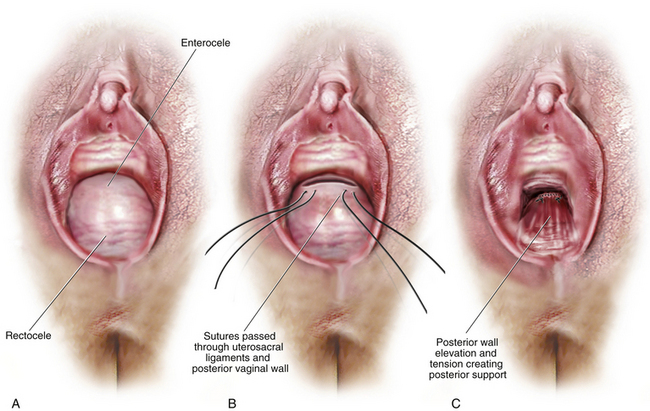 Vaginal Repair of Enterocele and Apical Prolapse | Abdominal Key