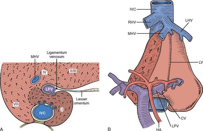 Liver Resection Hepatic Segmentectomy Abdominal Key