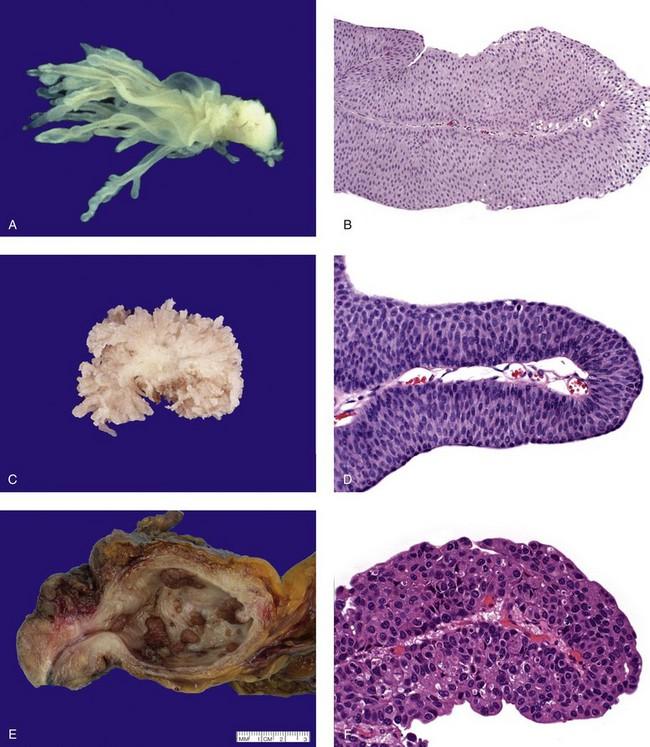 A húgyhólyagdaganatokról, Az urothelialis papilloma a hólyag