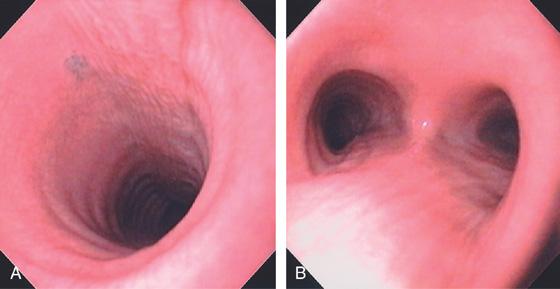 Oropharynx and Hypopharynx   Abdominal Key