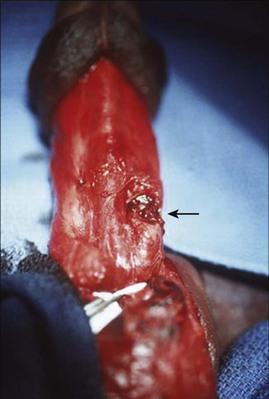 Penis Laceration 61