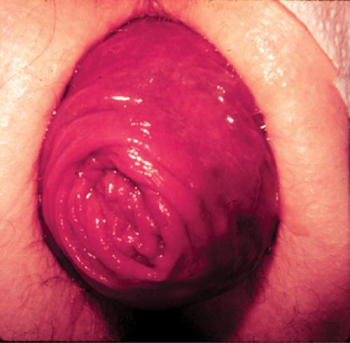 Пролапс прямой кишки фото, видео порно бурный женский оргазм кончает прямо в рот любовнику