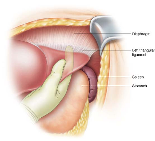 Truncal Vagotomy with Antrectomy and Billroth II ...  Truncal Vagotom...