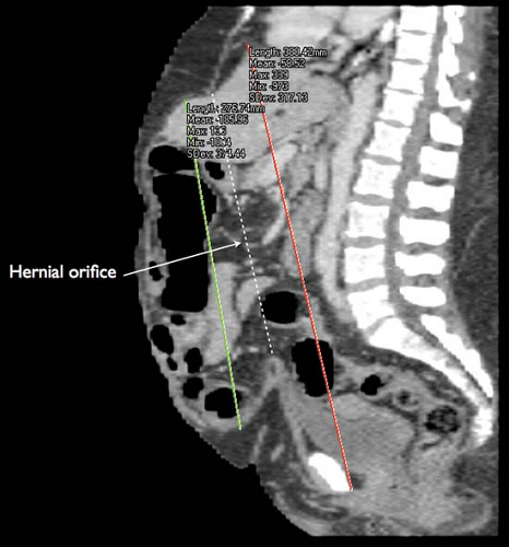 Massive Ventral Hernia with Loss of Domain | Abdominal Key