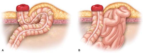 Parastomal Hernia Repair | Abdominal Key