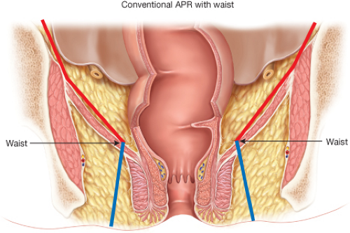 Open Abdominoperineal Resection | Abdominal Key