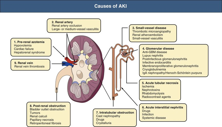 Pathophysiology And Etiology Of Acute Kidney Injury Abdominal Key