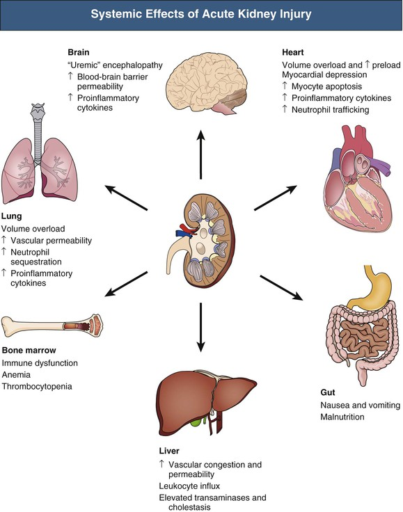 Pathophysiology and etiology of acute kidney injury abdominal key figure 69 7 systemic effects of acute kidney injury acute kidney injury aki may contribute to remote organ injury partly because of abnormalities in ccuart Choice Image