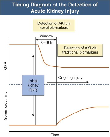 Diagnosis and clinical evaluation of acute kidney injury abdominal key figure 71 1 timing diagram of the detection of acute kidney injury aki gfr glomerular filtration rate adapted from reference 15 ccuart Gallery