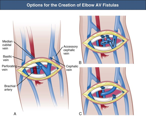 vascular access for dialytic therapies | abdominal key, Cephalic Vein