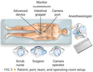 Appendectomy Laparoscopic Technique Abdominal Key