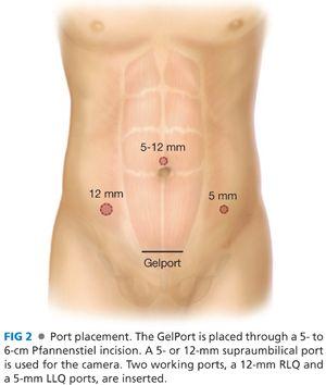 anterior quadrant anus