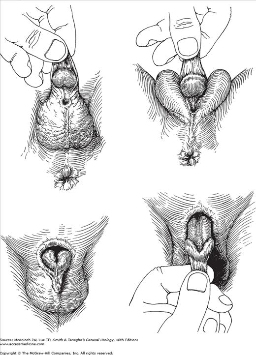 hypospadias-intersex