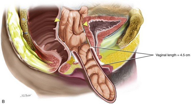 Surgical Management of Apical Vaginal Wall Prolapse | Abdominal Key