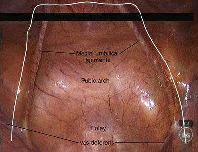 Minimally Invasive Radical Prostatectomy Abdominal Key