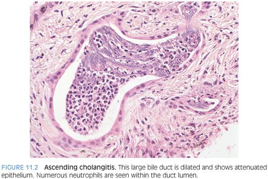 Biliary Tract Disease and Cholestatic Liver Disease