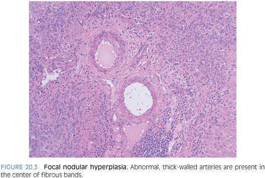 Hepatocellular Carcinoma | Radiology Key