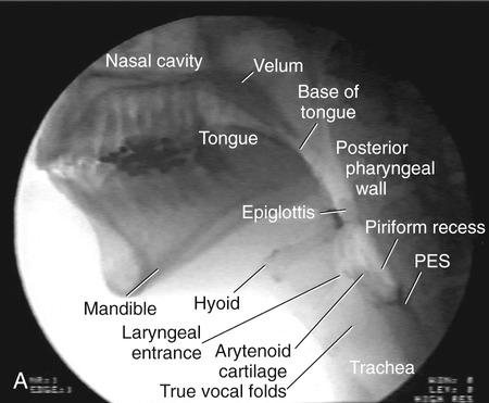 penetration in swallowing