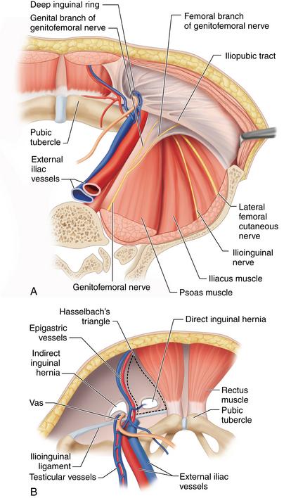 Total Extraperitoneal Tep Hernia Repair Abdominal Key