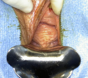Rectal Prolapse And Intussusception Abdominal Key