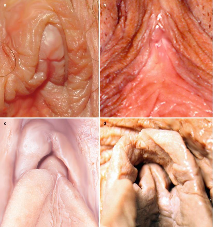 Cool Photos Of The Clitoris