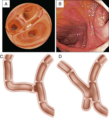 ERCP in Surgically Altered Anatomy | Abdominal Key