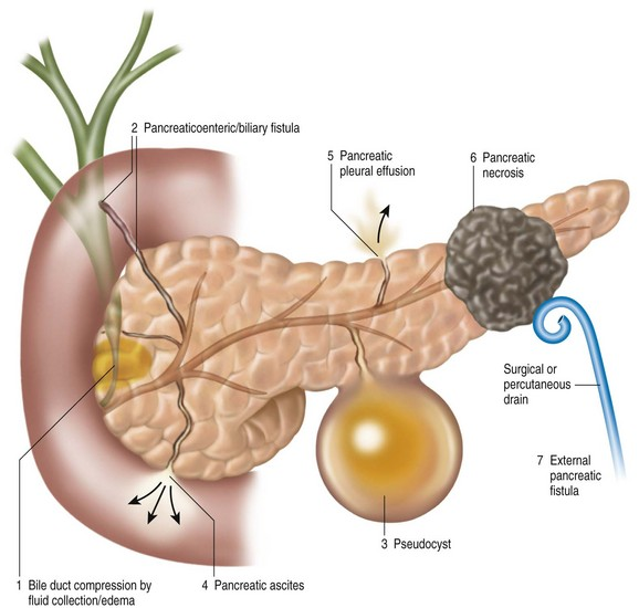 Pancreatic Interventions in Acute Pancreatitis: Ascites