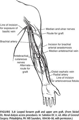 hemodialysis vascular access   abdominal key, Cephalic Vein