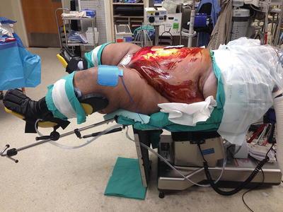 Ileoanal anastomosis Jpouch surgery  Mayo Clinic